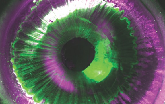 Image of eye 3D Bioprinting of Organs with Cellular Accuracy
